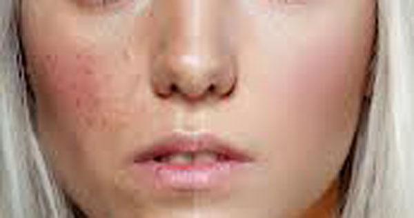 guestpost  acne 1 Guest Post: Φυσικές συνταγές, για πανάδες και ακμή.