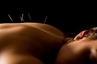 acupuncture3